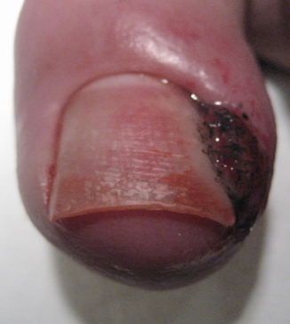 Le moyen du microorganisme végétal de la peau des pieds