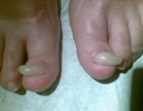 Le microorganisme végétal des pieds de la raison et le traitement